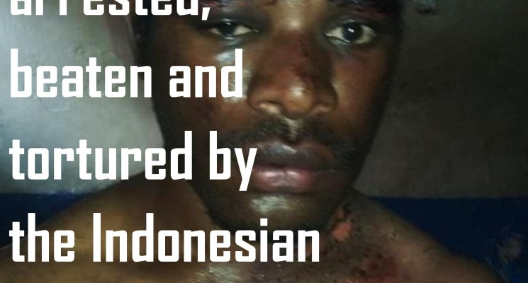 West Papuan youth tortured by the Indonesian police in Nabire